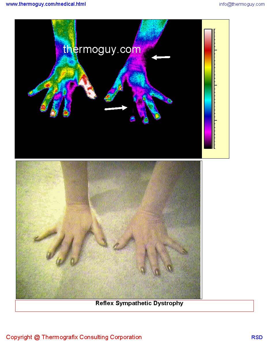 20120910-Reflex Sympathetic Dystrophy